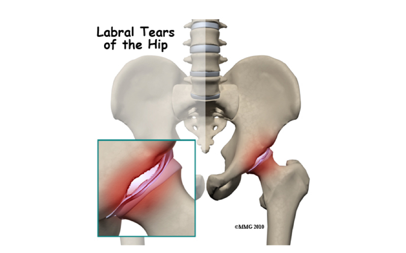 Dealing With A Labrum Injury And Hip Pain Physioactive