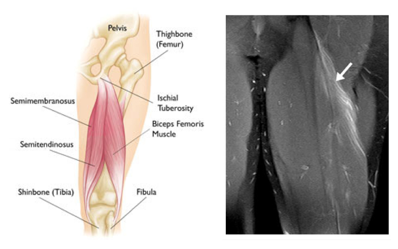 Returning To Sport After A Hamstring Injury Physioactive
